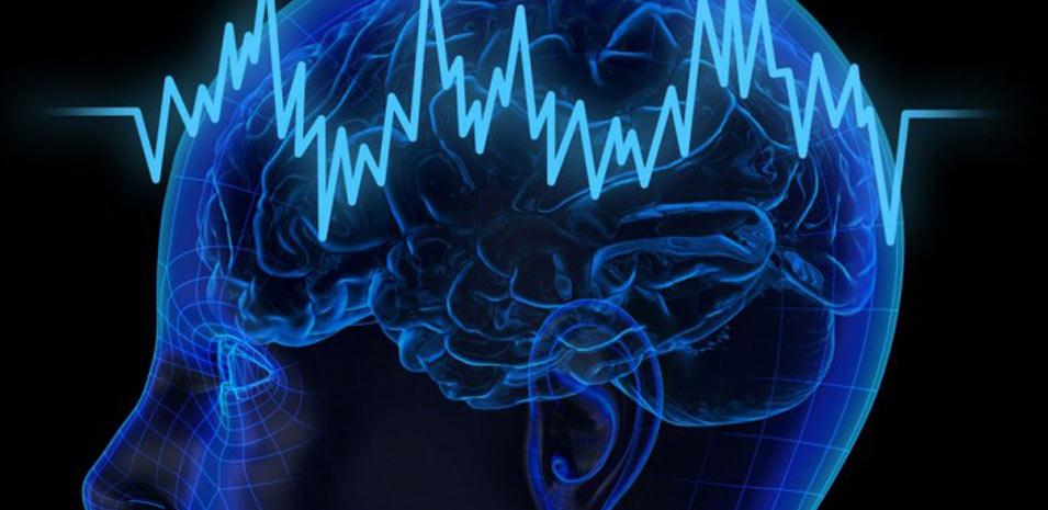 Эпилептология